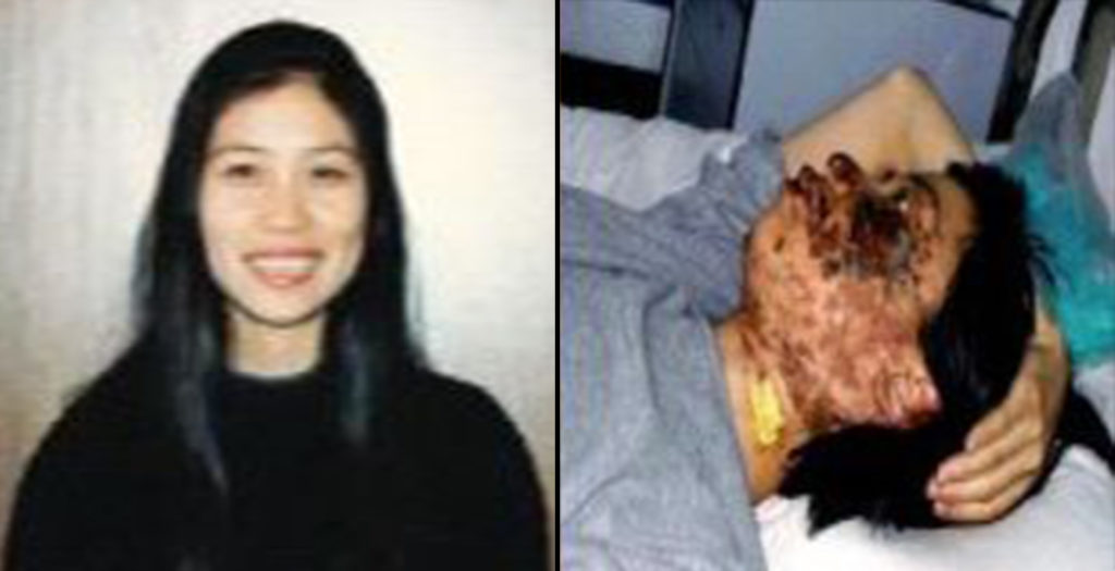 Gao Rongrong's photo before her death. The right photo was taken 10 days after her disfiguration. (Minghui.net)