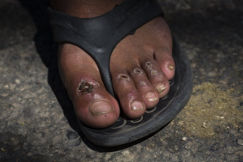 In this Oct. 31, 2018 photo, flies cover one of the blisters on Honduran migrant Gerson Noel Rivas' toes as the U.S.-bound Central American migrant caravan makes a stop in Juchitan, Mexico, after a day of walking. Three weeks of pounding the hot asphalt of highways every day takes a toll, especially for those plodding along in flimsy flip flops. (AP Photo/Rodrigo Abd)
