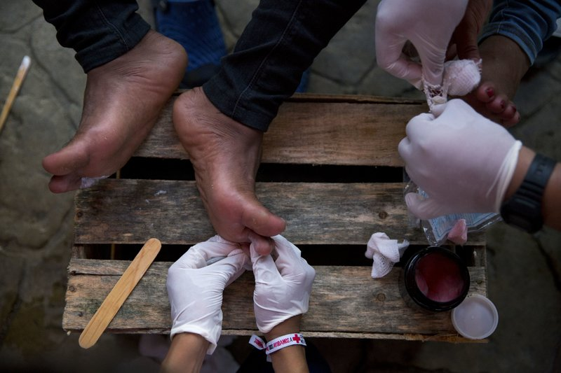 FILE - In this Oct. 26, 2018 file photo, Mexican Red Cross volunteers treat the blistered and cut feet of Central American migrants as their U.S.-bound caravan stops for the night in Arriaga, Mexico. Clamors have grown for buses to transport scores from the caravan to the Mexican capital, where the fatigued travelers hope to find respite and medical treatment, but those buses haven't come. (AP Photo/Rebecca Blackwell, File)