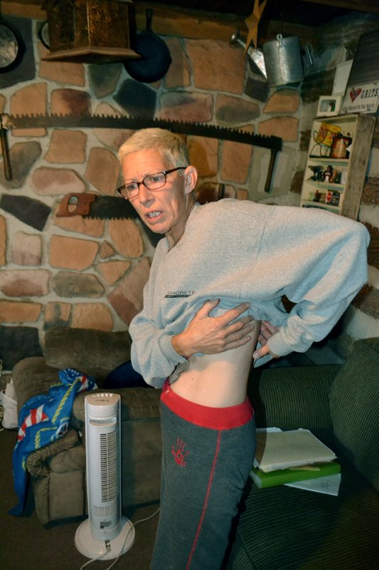 """In this Oct. 4, 2018 photo, Lisa Snyder, of Kempton, Pa., shows where a malfunctioning spinal cord stimulator was removed. After a March 29 implant by Dr. Steven Falowski, she had problems, similar to others interviewed by AP. """"I complained about this battery right away. I knew it was positioned funny. It burned,"""" she said. (AP Photo/Peter Banda)"""