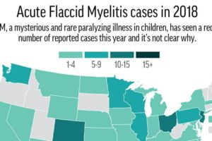 Record count reported for mysterious paralyzing illness