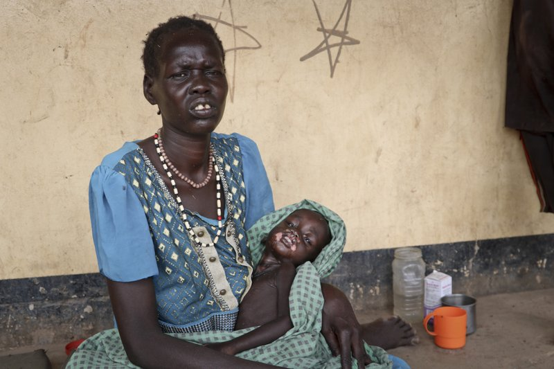 In this photo taken Tuesday, April 16, 2019, Agiu Nyang, 1, who is sick with measles, sits on the lap of his mother Amel Makir at the hospital in Kuajok, South Sudan. (AP Photo/Sam Mednick)