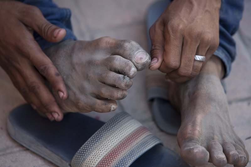 Honduran migrant Denis Javier Cortez Alvarado shows his injured feet after walking for 13 days during his journey toward the US-Mexico border in Chahuites, Oaxaca state, Mexico, Wednesday, April 24, 2019. (AP Photo/Moises Castillo)