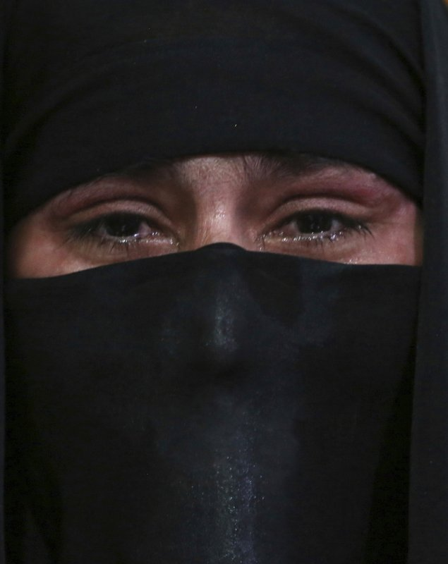 In this Monday, Feb. 18, 2019, photo, Khadeja, 16, who was burned by a pot of scalding hot water thrown by her husband, speaks during an interview with The Associated Press at a women's shelter in Herat, western of Afghanistan. (AP Photo/Rahmat Gul)