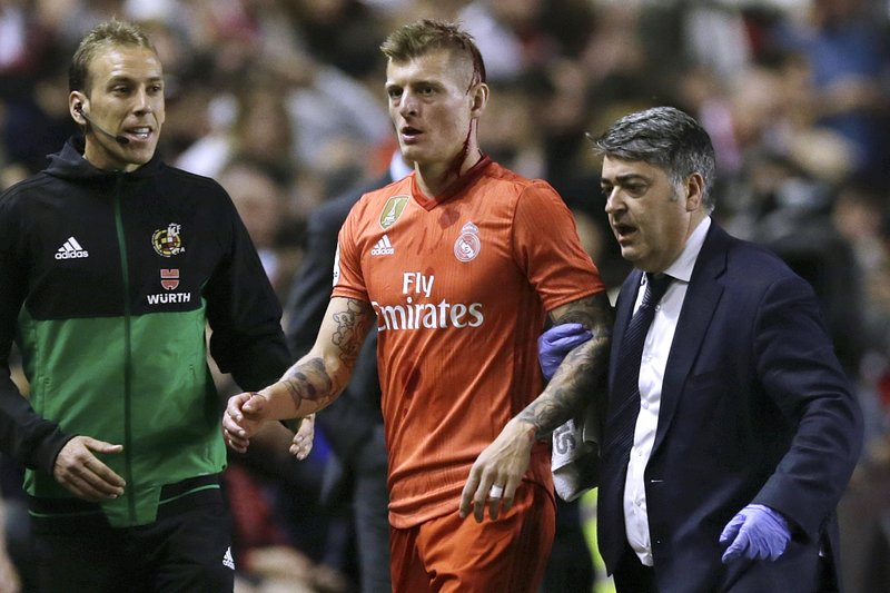 Real Madrid's Toni Kroos walks off the pitch with a bleeding head during a Spanish La Liga soccer match between Rayo Vallecano and Real Madrid at the Vallecas stadium in Madrid, Spain, Sunday, April 28, 2019. (AP Photo/Paul White)
