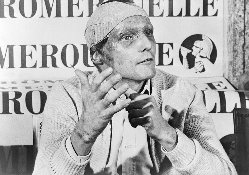 FILE - In this Sept. 12, 1976 file photo Austrian auto racer Niki Lauda, following his near fatal crash at the German Grand Prix six weeks ago, announces he would start at the Italian Grand Prix at Monza. Three-time Formula One world champion Niki Lauda, who won two of his titles after a horrific crash that left him with serious burns and went on to become a prominent figure in the aviation industry, has died. He was 70. (AP Photo, File)