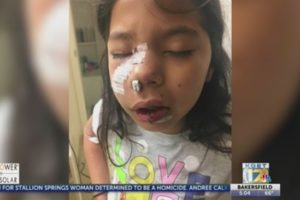 Family takes legal action after student attacked by dog at elementary school