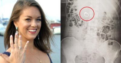 Woman has surgery after dreaming she swallowed engagement ring because she actually did