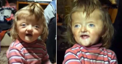 2-year-old banned from nursery because staff said her deformed skull is too scary