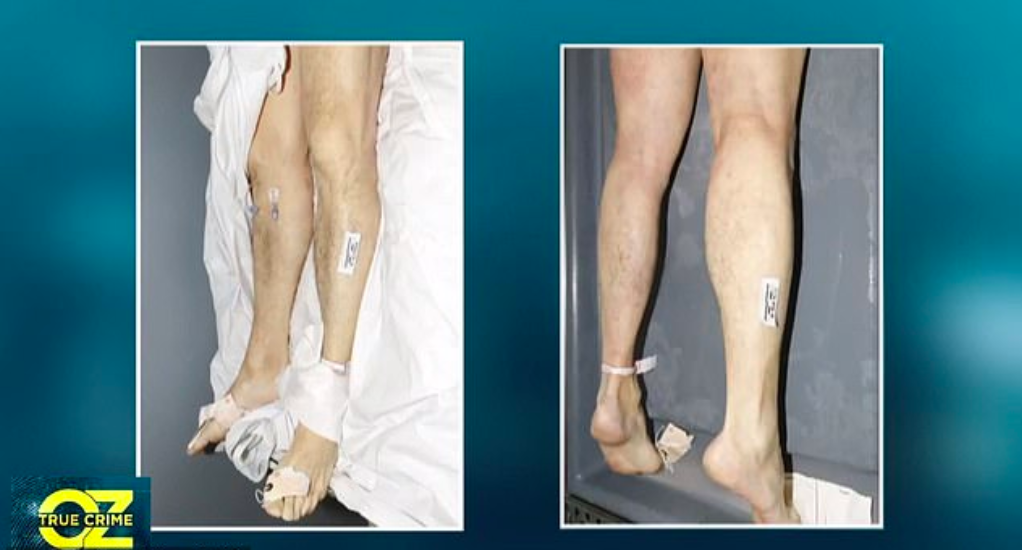 Screen shot of Epstein's lower legs. (Dr. Oz show)