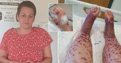 'Am I going to have my legs amputated?' Woman in Scotland suffers horrific reaction to AstraZeneca vaccine