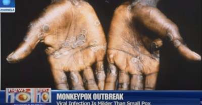 Two rare cases of deadly monkeypox infection identified in North Wales