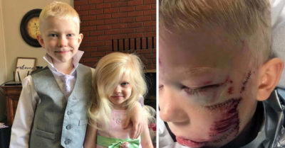 Boy receives 90 stitches after saving sister from dog attack, wishes he did more to 'shield her'